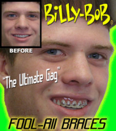 BILLY BOB--FOOL ALL BRACES TEETH
